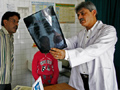A doctor examines a tuberculosis patient's X-ray