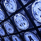 Brain scans to detect cancer