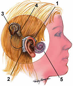 Wis. could be first to require coverage for cochlear implants ...