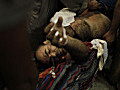 Morsi suuorter lies wounded on a stretcher